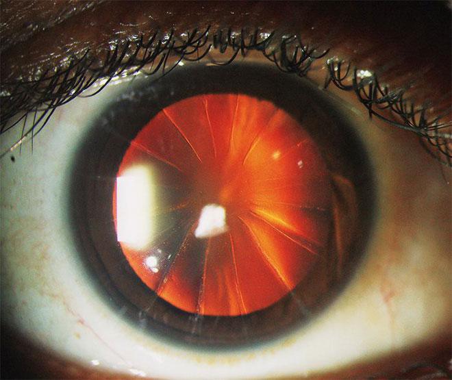 Bệnh nhân với con mắt như bánh pizza 8 miếng là minh chứng cho thấy y học từng rất đáng sợ
