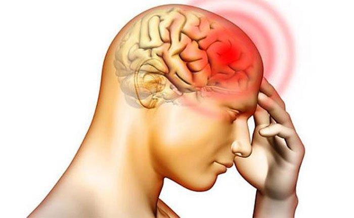 Bệnh phù não: Nguyên nhân, triệu chứng và cách điều trị