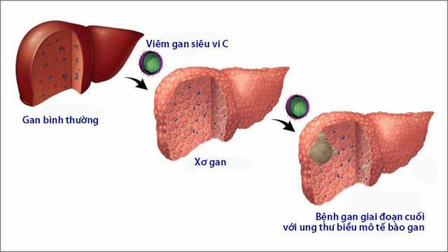 Bệnh viêm gan C: Nguyên nhân, triệu chứng và cách điều trị