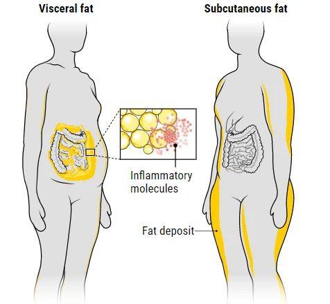 Béo như thế nào là béo khỏe, béo tốt? Như thế nào là béo xấu và dễ mắc bệnh?