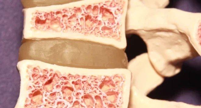 Biến đổi gene kỳ lạ khiến nhiễm sắc thể gây loãng xương giúp xương cứng chắc khác thường
