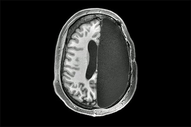Bộ não hoạt động thế nào nếu bị cắt bỏ một nửa?