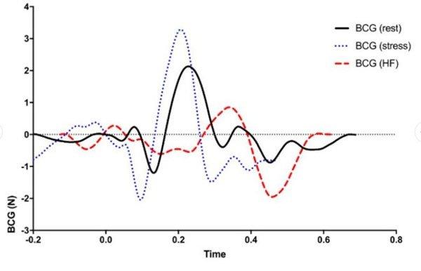 Bồn cầu cao cấp có khả năng đo nhịp tim khi người dùng 'đi trút bầu tâm sự', tại sao không?