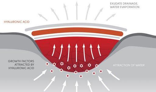 Các nhà khoa học phát minh ra loại gel có thể hàn gắn mọi vết thương trên cơ thể và cả nội tạng