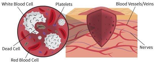 Các nhà khoa học tìm thấy một loại tế bào hoàn toàn mới, giúp chữa lành tổn thương trong trái tim