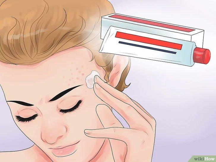 Cách để có một gương mặt sạch mụn