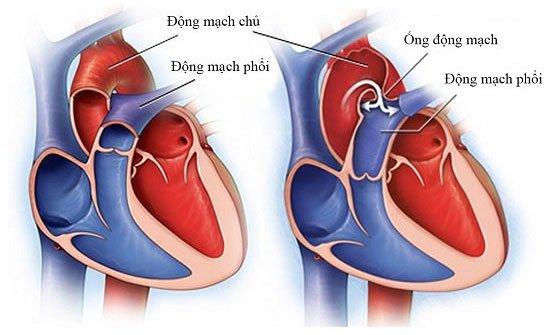 Cách trái tim hoạt động và bơm máu khắp cơ thể