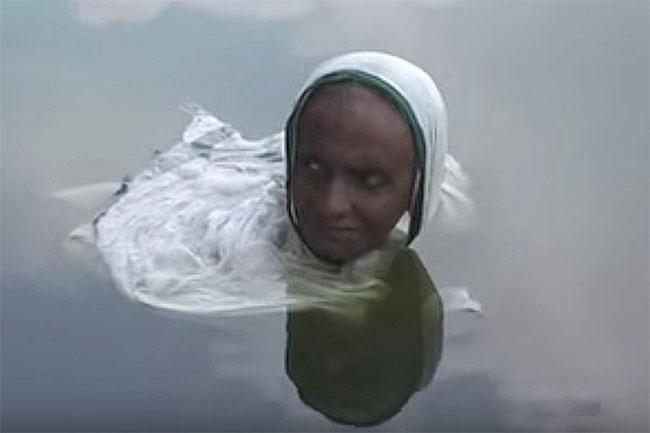Căn bệnh bí hiểm khiến người phụ nữ thành nàng tiên cá suốt 20 năm