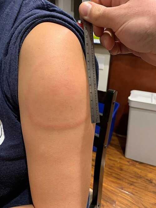 Cánh tay Covid - triệu chứng vô hại sau tiêm vaccine Moderna