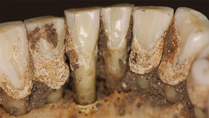 Cao răng tiết lộ thói quen dùng thuốc của người xưa