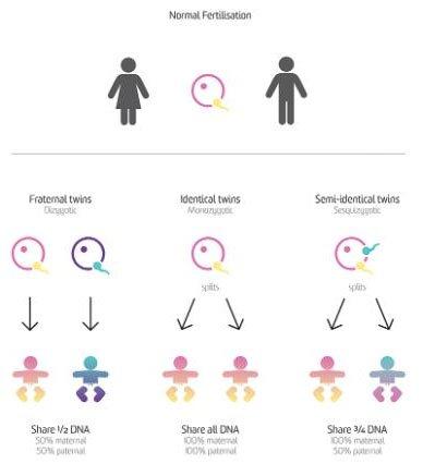 Cặp sinh đôi thể cực thứ hai trên thế giới: Hai tinh trùng thụ tinh một trứng