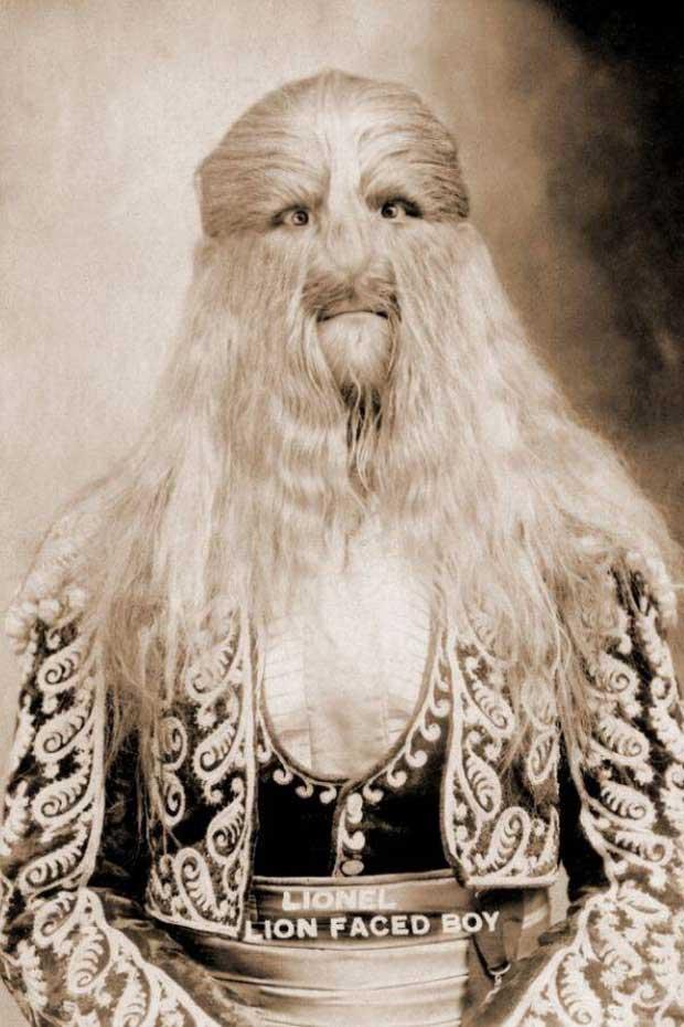 Câu chuyện cuộc đời đầy bí ẩn về người đàn ông có biệt danh Người có khuôn mặt sư tử
