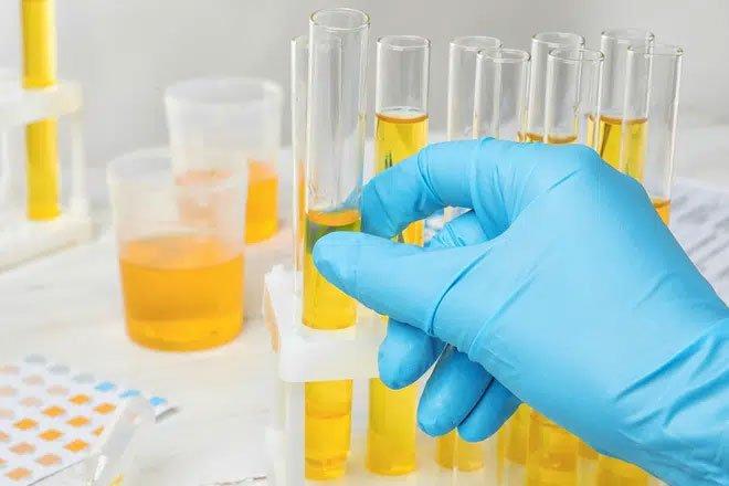 Chỉ xét nghiệm nước tiểu, 20 phút có ngay kết quả ung thư tuyến tiền liệt với độ chính xác gần 100%