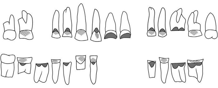 Chiếc răng 4000 năm tuổi trả lời cho câu hỏi: Người cổ đại từng làm nghề gì?