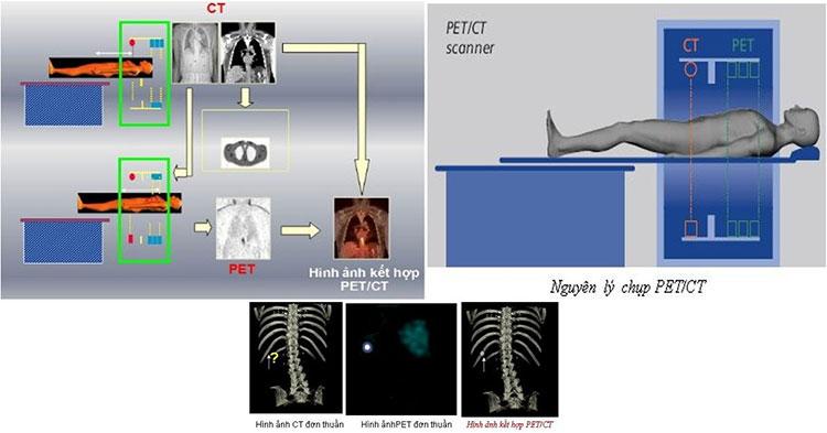 Chụp PET/CT là gì?