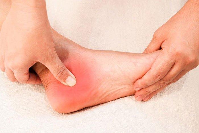 Đau gót chân: Nguyên nhân, triệu chứng và cách điều trị