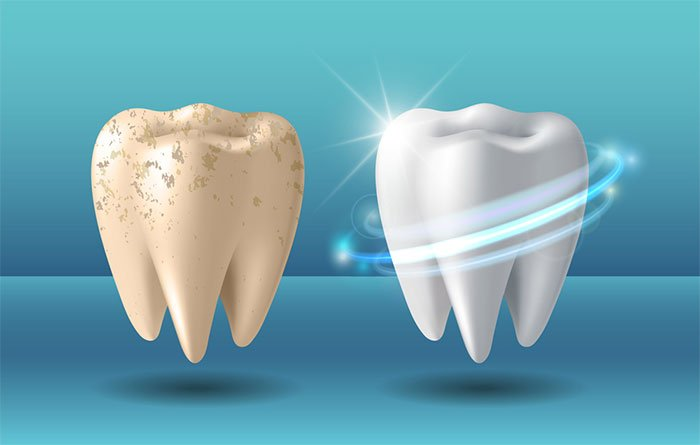 Điều gì sẽ xảy ra khi chúng ta tẩy trắng răng?