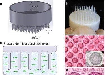 Điều trị hói đầu nhờ công nghệ in 3D