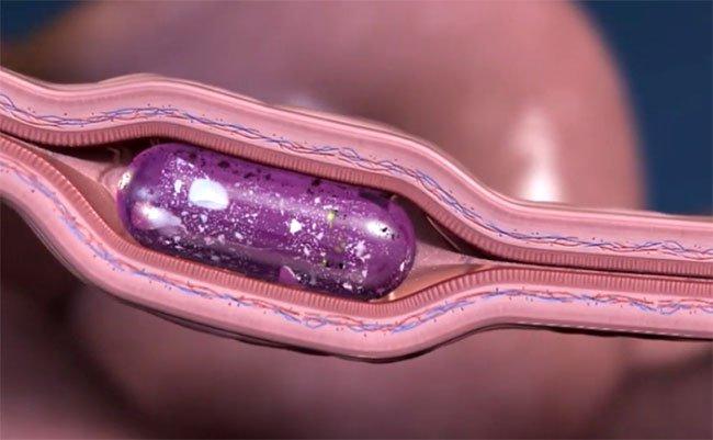 Độc đáo công nghệ tiêm không đau bằng cách đâm kim thẳng vào… thành ruột