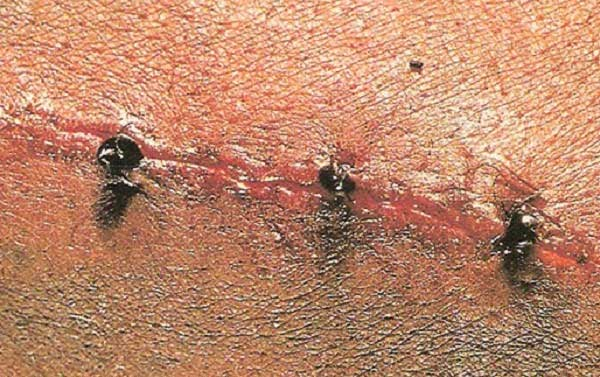 Dùng kiến khâu vết thương gây tranh cãi trong lịch sử y khoa