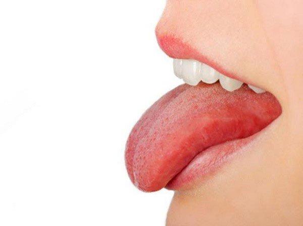 Đừng nhầm lẫn ung thư lưỡi và nhiệt miệng