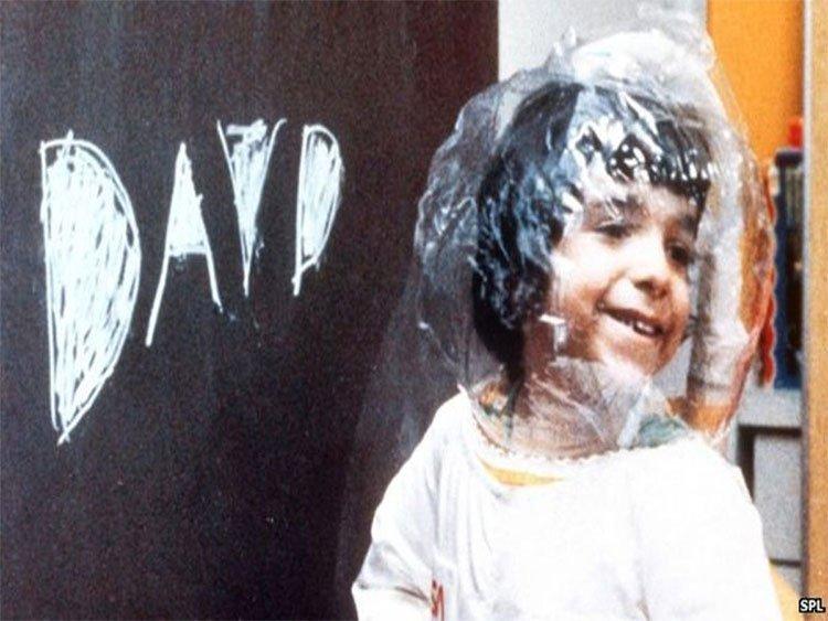Dùng virus HIV để trị bệnh cho những đứa trẻ bong bóng