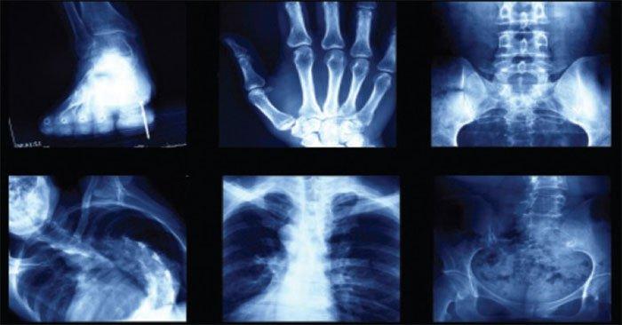 Giải mã 5 lời đồn oan trái về tia X-quang