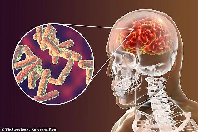 Giải mã những hiểu lầm về bệnh viêm màng não