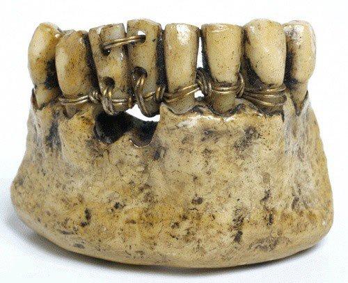 Hoảng hồn mục đích người xưa khi lấy răng của binh lính tử trận