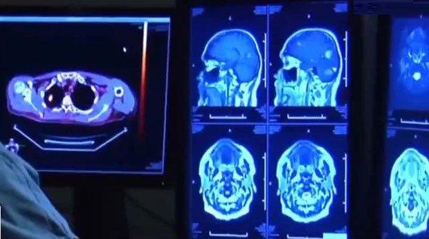 Hội chứng Covid kéo dài âm thầm hủy hoại chất lượng cuộc sống của người bệnh