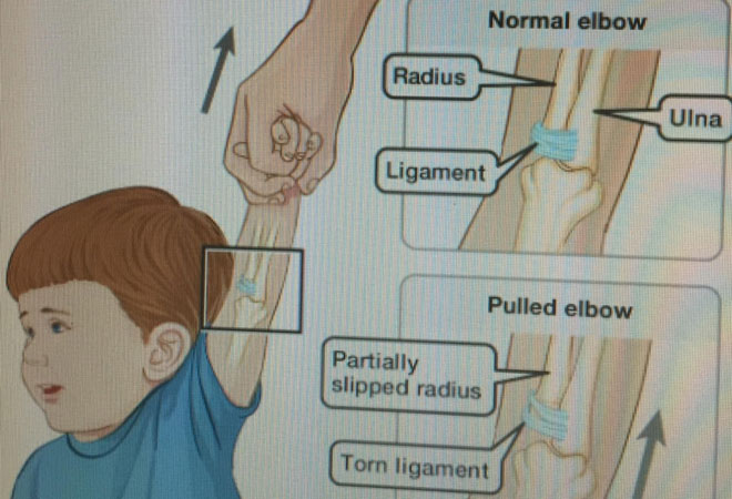 Kéo giật tay trẻ đột ngột dễ làm trật khớp khuỷu