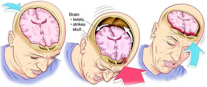 Khối lòng đỏ trứng ma thuật này đang giúp các nhà khoa học hiểu về chấn thương sọ não