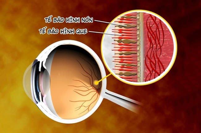 Làm thế nào để biết bản thân đang mắc bệnh mù màu?