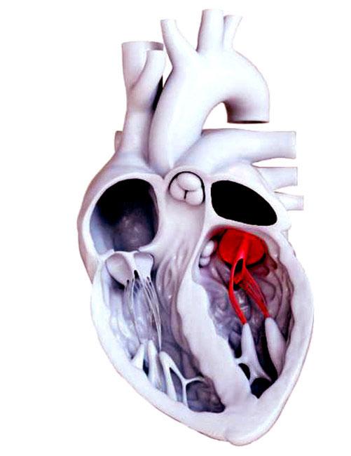 Lần đầu tiên trên thế giới, thay van tim không cần phẫu thuật mở