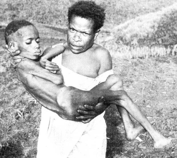 Loại bệnh lạ khiến người mắc phải cười cho đến chết, nguyên nhân đến từ hủ tục của bộ tộc cổ xưa