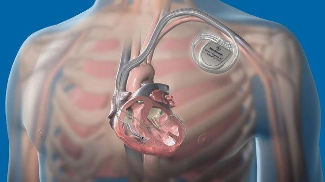 Máy ICD trong cơ thể Christian Eriksen hoạt động ra sao?