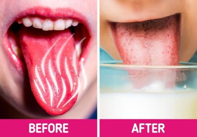 Mẹo chữa bỏng lưỡi khi ăn uống phải món nóng