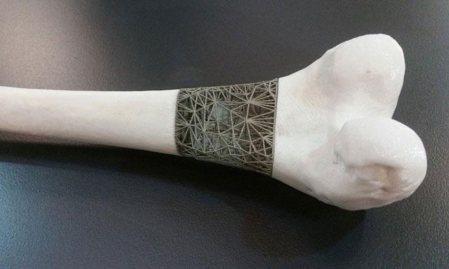 Một phụ nữ được cấy ghép đĩa đệm cột sống nhờ công nghệ in 3D