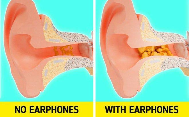 Nếu tiếp tục đeo tai nghe lâu, đây sẽ là điều xảy ra với cơ thể bạn