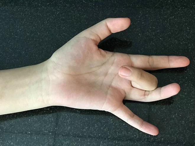 Ngón tay lò xo là bệnh gì?
