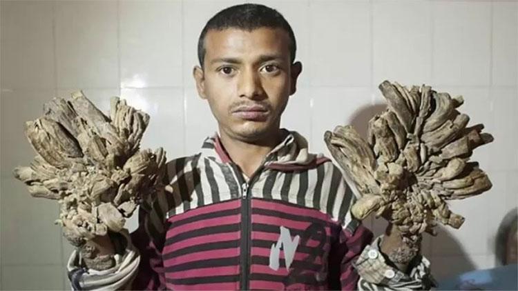 Người cây Bangladesh tái nhập viện vì bệnh nặng hơn