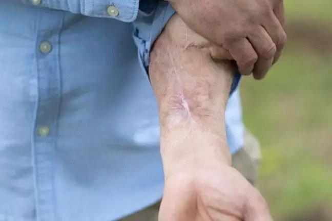 Người đàn ông bị bệnh rụng mất cậu nhỏ, phải nhờ các nhà khoa học cấy lại cái khác lên tay
