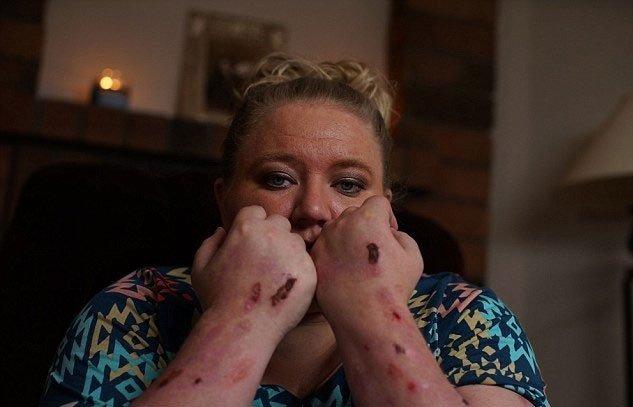 Người phụ nữ mắc căn bệnh đau đớn nhất thế giới