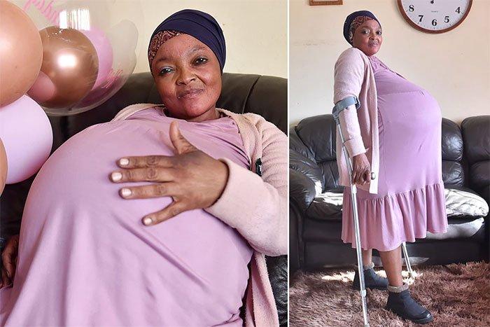 Người phụ nữ tự nhận sinh 10 gây xôn xao