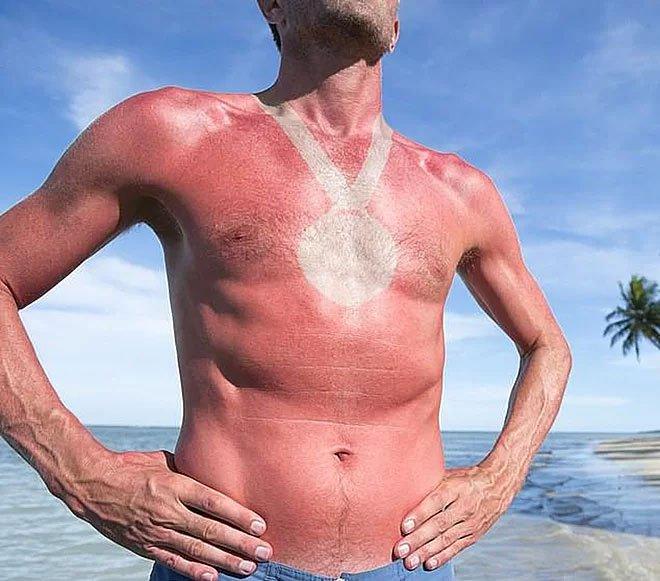 Nguy cơ ung thư da từ trò chơi ngày hè hình xăm cháy nắng