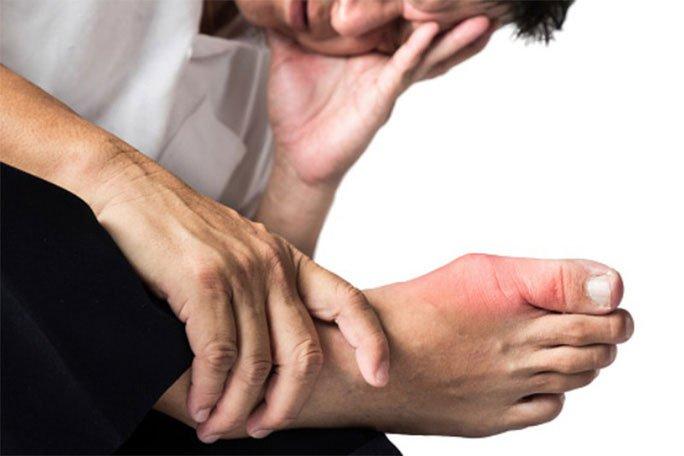 Nguyên nhân bất ngờ khiến nhiều người dễ bị bệnh gout