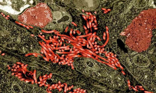 Nhật Bản vừa quyết định nhập khẩu... Ebola và rất nhiều virus chết người khác