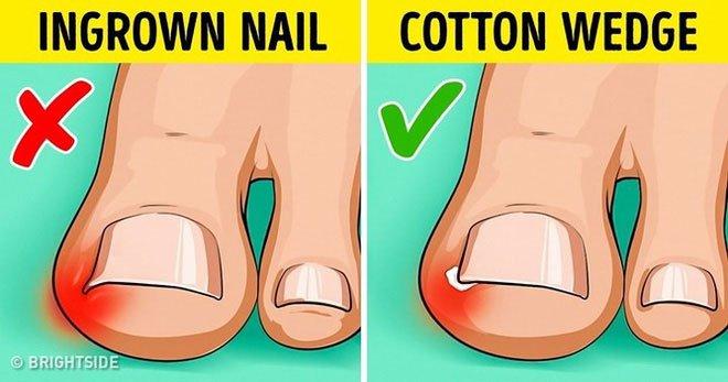 Những cách tự nhiên chữa móng chân mọc lệch đâm vào da thịt