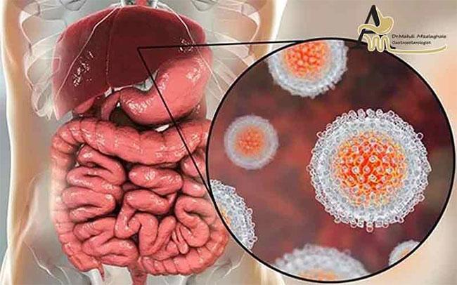 Những căn bệnh rất dễ lây truyền qua đường ăn uống ai cũng phải biết mà tránh