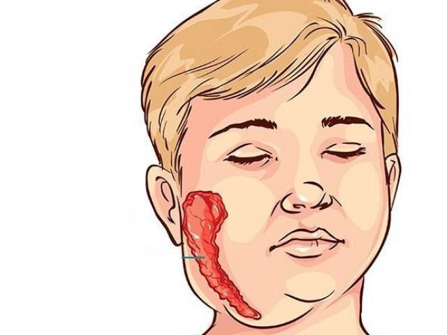 Những loại bệnh nguy hiểm cần phải tiêm vaccine ngay từ khi còn nhỏ